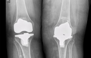 Preoperative AP film shows loss of space between the femoral and tibial components.