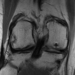 MRI demonstrating grade IV chondral loss on the posterior weight bearing third of the lateral femoral condyle and on the anterior aspect of the medial femoral condyle of the right knee.