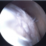 Arthroscopic evaluation of the medial femoral condyle revealing soft, depressed, crab meat, fissuring, and fragmented chondral defects covering 85% of the condyle surface.