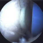 Arthroscopic view of the osteochondral allograft plug loaded into the recipient hole with a 1mm overhang.