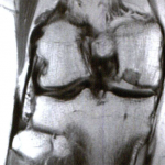 MRIs demonstrating progressive osseous incorporation of the osteochondral allograft in the medial femoral condyle with reparative fibrocartilage overlying the graft (a-b) at 5 months and (c-d) 12 months post-operatively.