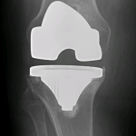 Lucencies are progressive and varus subsidence of the tibial component is evident on subsequent xrays 1 and 2 years later.
