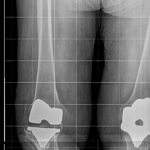 Standing full-length view illustrates overall limb varus deformity.
