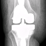 AP radiograph of revision total knee with tibial coupled cone obtaining additional tibial metaphyseal support.