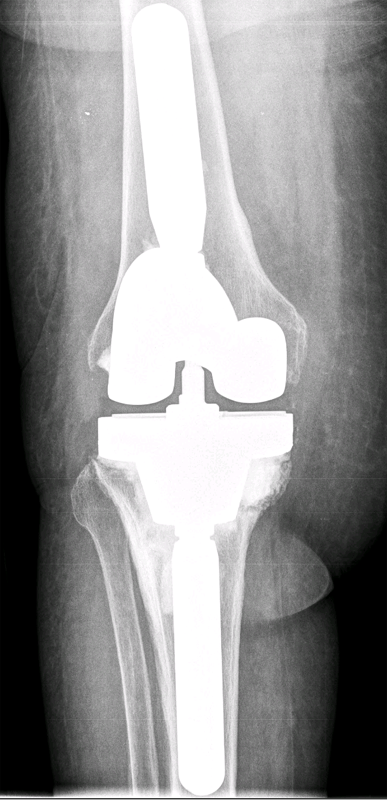 Tibial Component Loosening And Bone Loss In A Patient With
