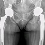 Postoperative X-ray of revision hip arthroplasty.